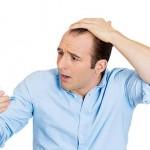 4 Perkara Yang Membuatkan Rambut Gugur. #4 Paling Penting