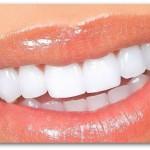 6 Tips Putihkan Gigi Yang Kuning